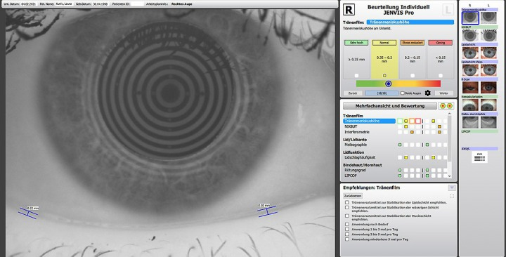Hochgasdurchlaessige_Kontaktlinsen_1140px